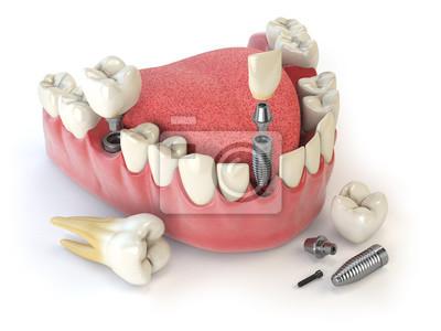 Постер Стоматология Зуб человека имплантата. Стоматологическая концепция. Человеческие зубы или зубные протезы.Стоматология<br>Постер на холсте или бумаге. Любого нужного вам размера. В раме или без. Подвес в комплекте. Трехслойная надежная упаковка. Доставим в любую точку России. Вам осталось только повесить картину на стену!<br>