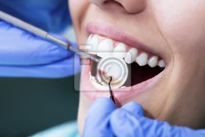 Стоматологический Осмотр, 30x20 см, на бумаге02.09 Международный день стоматолога<br>Постер на холсте или бумаге. Любого нужного вам размера. В раме или без. Подвес в комплекте. Трехслойная надежная упаковка. Доставим в любую точку России. Вам осталось только повесить картину на стену!<br>